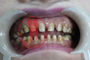 Răng sau khi đã được mài