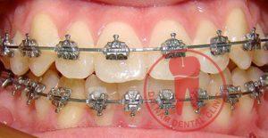 Ưu điểm của niềng răng mắc cài kim loại