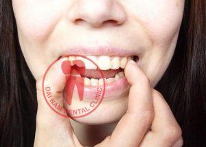 Răng hô nhẹ nên niềng hay bọc răng sứ