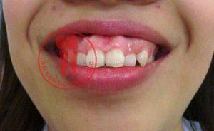 Ảnh hàm răng bị vổ