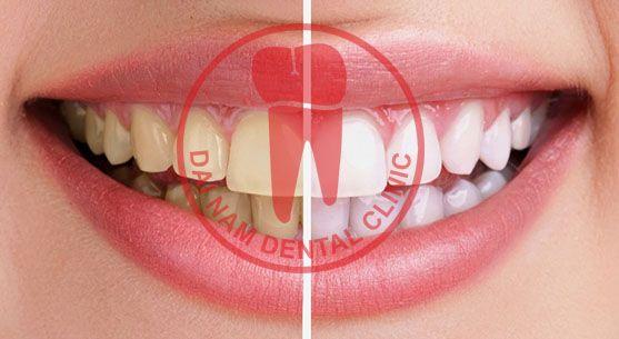 Tẩy trắng răng giúp bạn tự tin hơn.