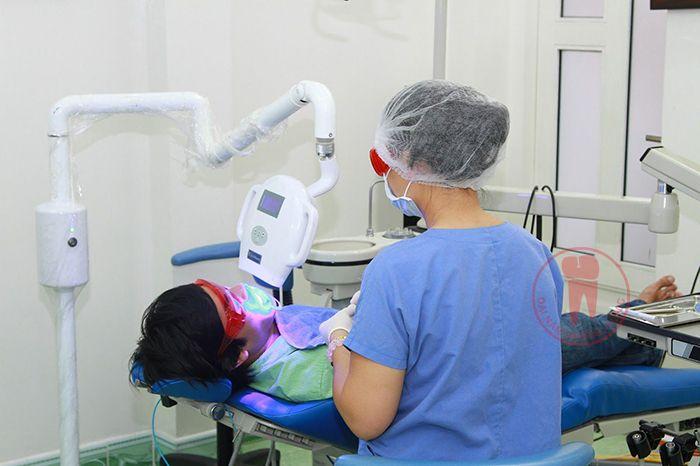 Thực hiện tẩy trắng răng tại phòng khám