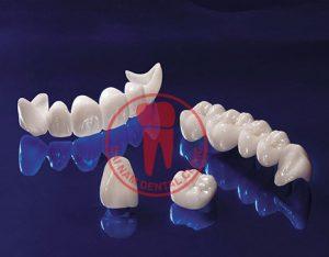 Ảnh về răng sứ zirconia