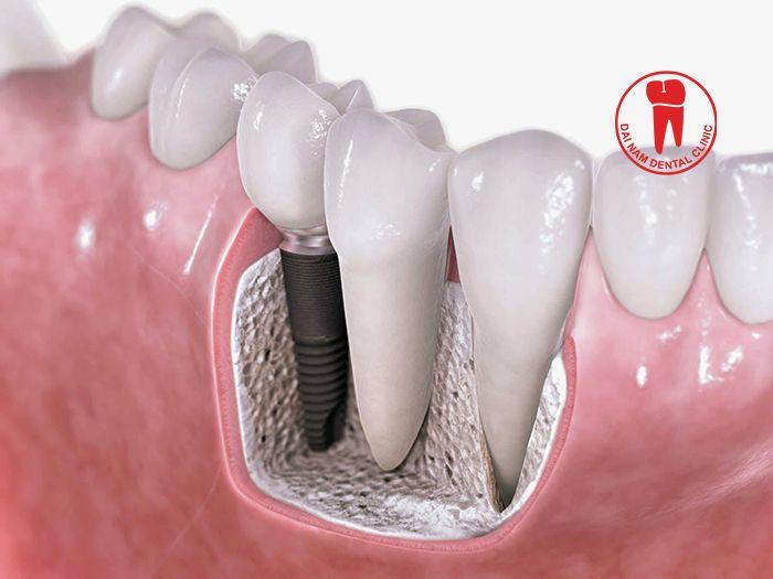 Để trụ Implant phát huy hết những ưu điểm và có thể tồn tại lâu dài, không chỉ đòi hỏi trình độ tay nghề của bác sĩ thực hiện mà còn phụ thuộc rất lớn vào quá trình chăm sóc răng miệng của bệnh nhân