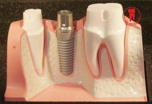 nếu được chăm sóc đúng cách và cẩn thận thì trụ Implant sẽ nhanh chóng tích hơp với xương hàm, giúp tiết kiệm thời gian cho quá trình phục hình trên Implant