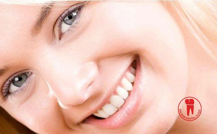Một hàm răng trắng đều không những đảm bảo tốt chức năng ăn nhai mà còn góp phần không nhỏ tạo nên sự tự tin cho bạn trong giao tiếp và công việc hằng ngày