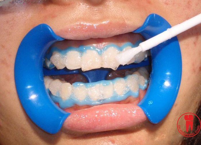 Tẩy trắng răng là phương pháp hiệu quả giúp lấy lại vẻ đẹp tự nhiên của răng nhưng không có bất kỳ xâm lấn nào cho răng