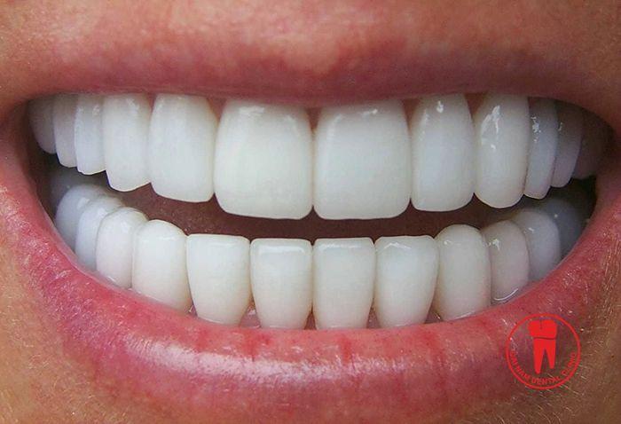 Với những trường hợp sậm màu mà tẩy trắng răng hay cạo vôi răng không hiệu quả thì bọc răng sứ giải pháp tối ưu nhất