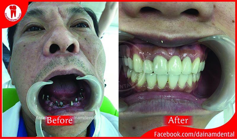 Cấy ghép Implant mang lại cho bạn một hàm răng chắc khỏe, đều đẹp