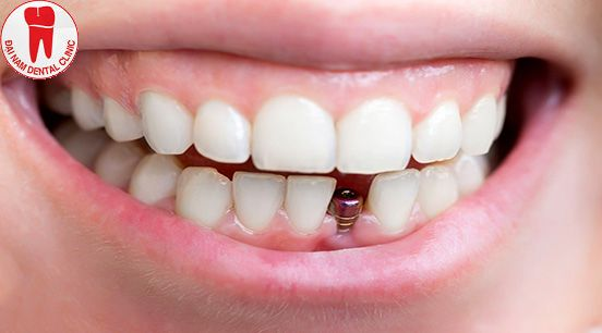 Trụ implant sau khi cấy ghép