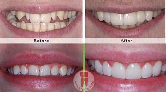 bị mất 1 răng thì bọc bao nhiêu răng sứ?