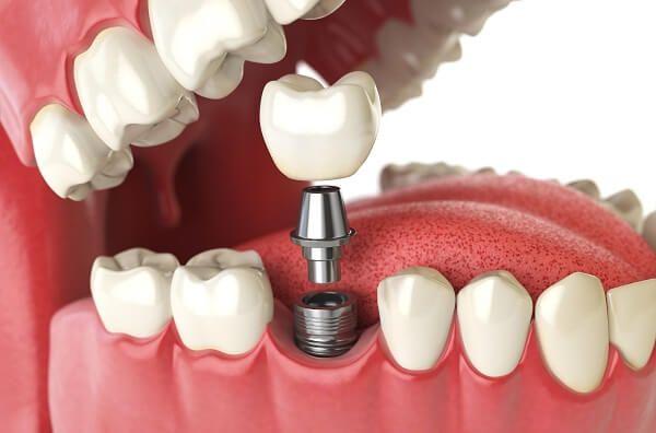 Nhờ công nghệ hiện đại, cấy ghép Implant không mang lại cảm giác đau đớn như bạn nghĩ
