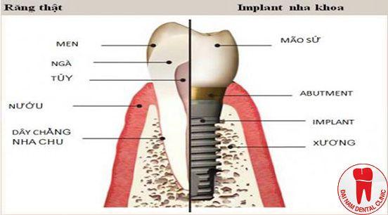 răng implnat và răng thật