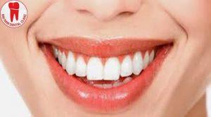 lấy tủy khi bọc răng sứ