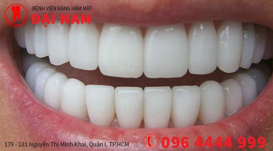 tẩy trắng răng ở Sài Gòn