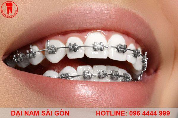 niềng răng mắc cài kim loại giá rẻ nhất gia lai